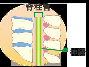 脊柱管狭窄のイラスト
